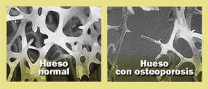 Image of osteoporosis causes weak bones: a normal bone compared to a bone with osteoporosis.
