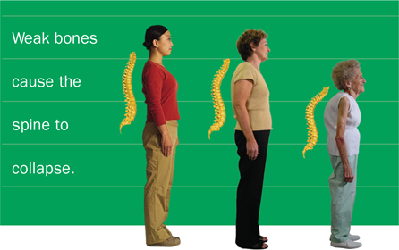 Images of female adults starting with young to middle-aged to older showing how weak bones can cause the spine to collapse as we age.