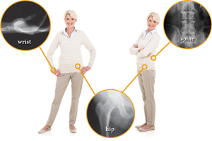 Image of a woman showing areas most likely to fracture, which are the wrist, spine, and hip.